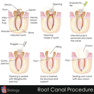 advanced endodontic therapy
